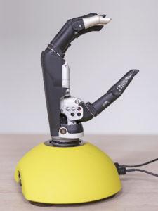 reportage protheses Bionische hand 4 – Sanne
