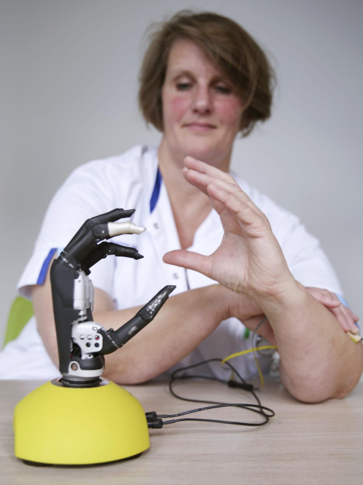 reportage protheses Bionische hand 1 – Sanne