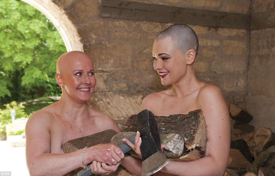 Whether you have cancer, thinning hair, scarring or Alopecia, this calendar aims to showcase and raise awareness of lovely ladies (and gents) without hair