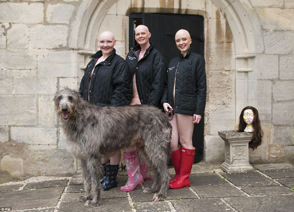 The calendar is on sale in a bid to raise awareness and funds for Alopecia