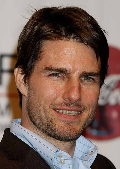 Tom Cruise has worn braces over the years to correct his smile