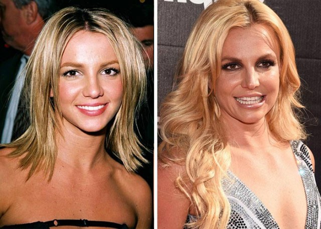 Britney Spears Plastic Surgery Face