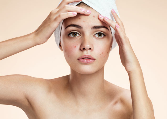 Of those surveyed 35% say that their confidence can be affected by a bad skin day or breakout