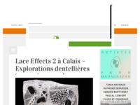 Artikel in online kunstblad over de expositie Lace Effects 2 in Calais. Article in online art magazine on the exhibition Lace Effects 2 in Calais.