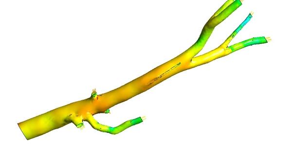 Human Aorta