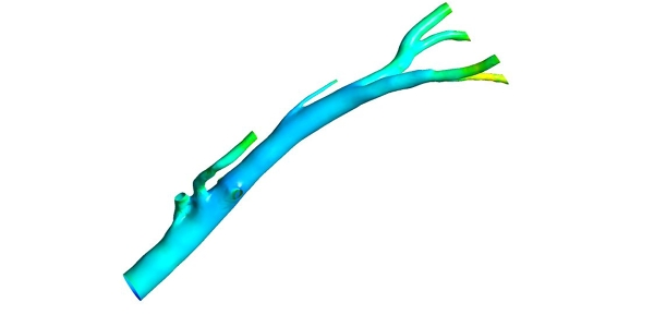 Human Aorta Transient Simulation with ANSYS CFX