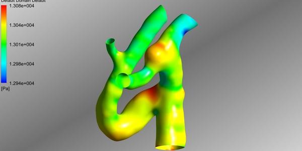 Computational Fluid Dynamics of Aneurysm