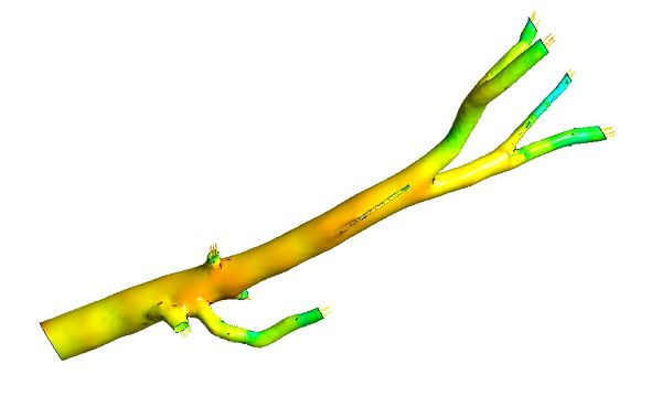 Aorta-Simulation-Pressure-User-Surface.jpg