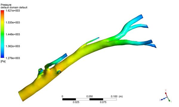 Aorta-Simulation-Fluent-Pressure-Surface-Plane-FetchCFD.jpg