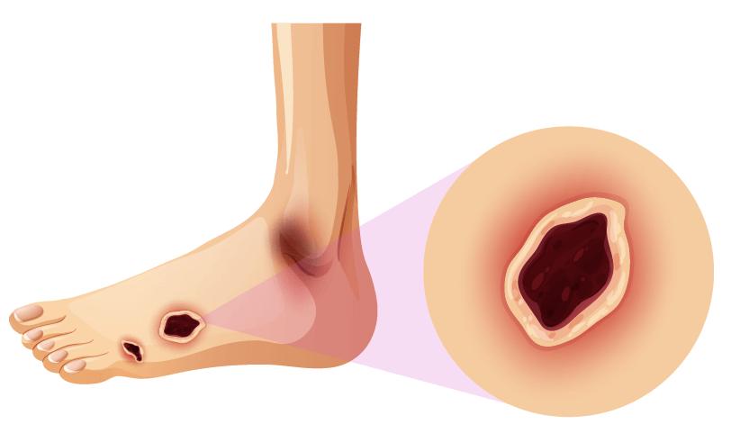 Mortalité et pied diabétique: quels marqueurs prédictifs?