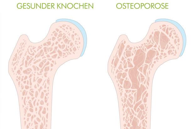 Osteoporose Online2 De