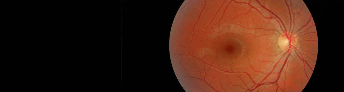 Slim Banner Retinal