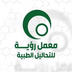 كيميائي تحاليل طبية يشترط خبرة