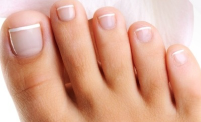 Cracked Discolored And Thickened Nails Look Unhealthy Unpleasant So You Keep Them Out Of Sight Unless Its Treated