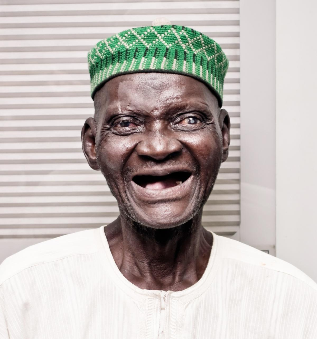 An elderly Nigerian male grins into the camera, a cataract obvious in one eye. He's wearing a bright green hat and loving it