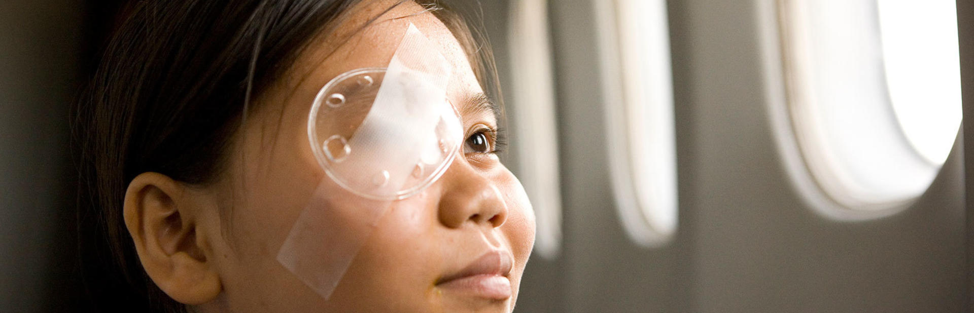 A young girls stares out of the windows of the Flying Eye Hospital, an eye patch over her right eye