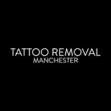 Tattoo Removal Manchester