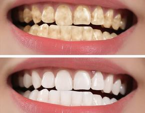 Teeth whitening treatment at Stratford