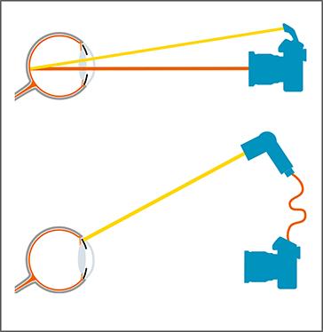 Die Grafik zeigt, wie der Einfallswinkel des Blitzlichts im menschlichen Auge reflektiert wird.