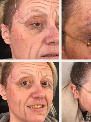 2017 Aging SPFX age 18 - age 80 · By: Rosey Duffy