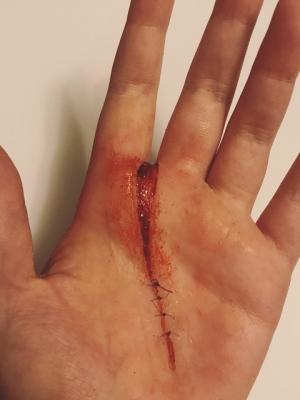 Sutured hand
