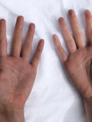 2018 Hands palms · By: Alys Daroy