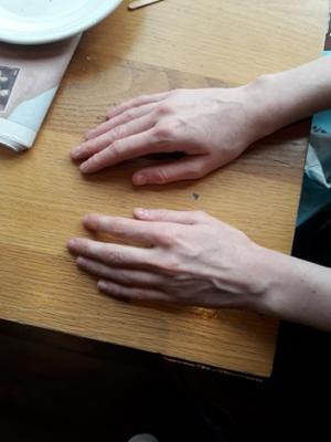 Hand photo (backs of hands)