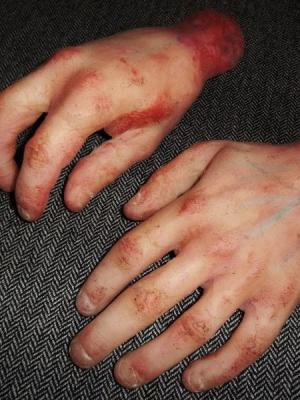 Severed Hand Prosthesis' · By: Joe Garton