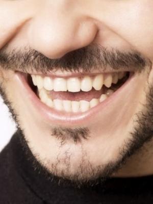 Teeth (smile)