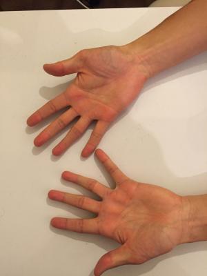 Hands (palm)
