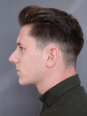 Side profile