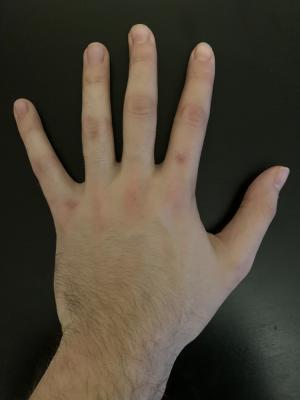 Handshot