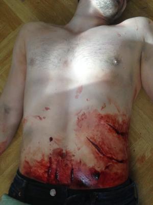 2017 SFX Murder victim stab wounds · By: Ann Tillinghast