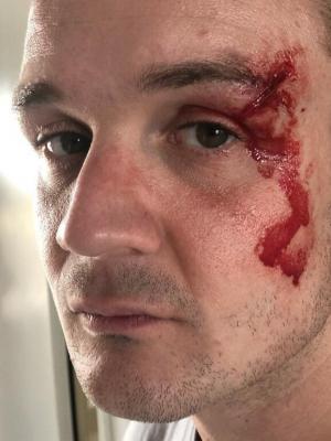 Hair and FX Makeup on Josh Herdman - Room to Breathe