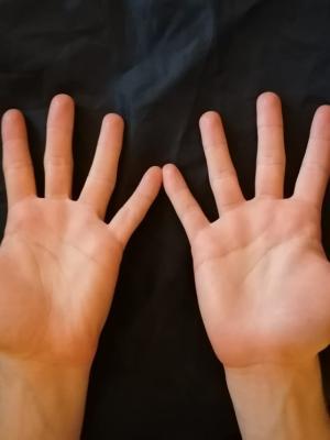 Hands - Front