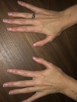 2021 Photo of hands
