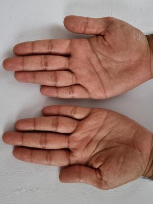 2021 Hands · By: Another Level Medispa