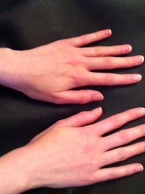 2015 Hands