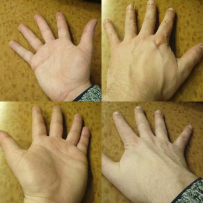 Hands front and back