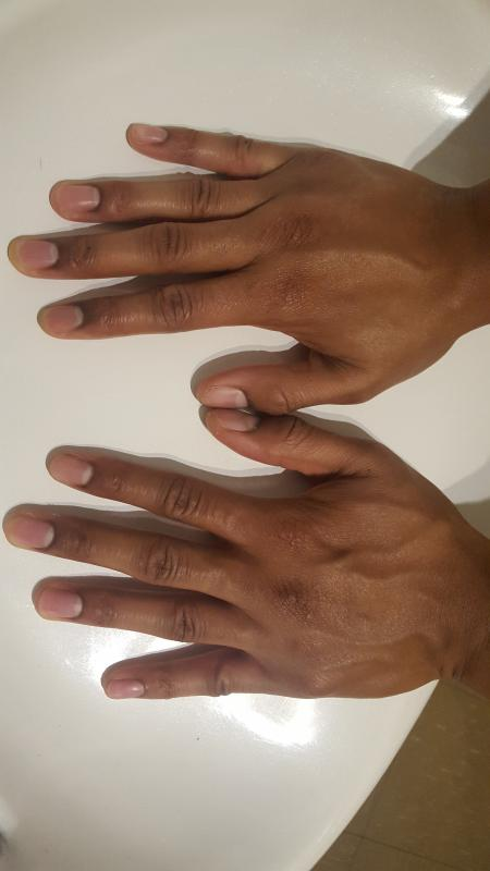 Back of Hands