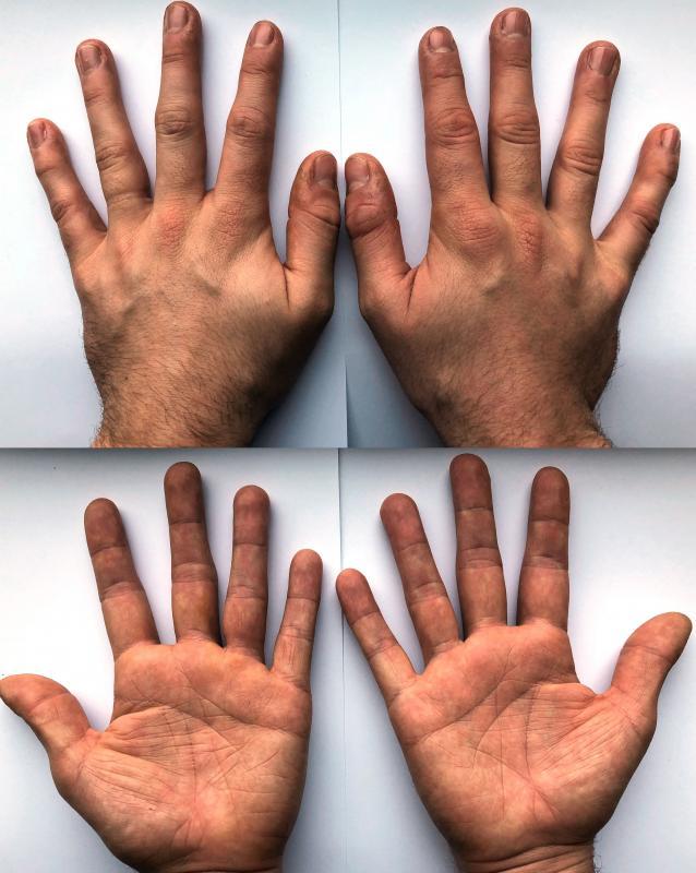 Jake Waring Hands