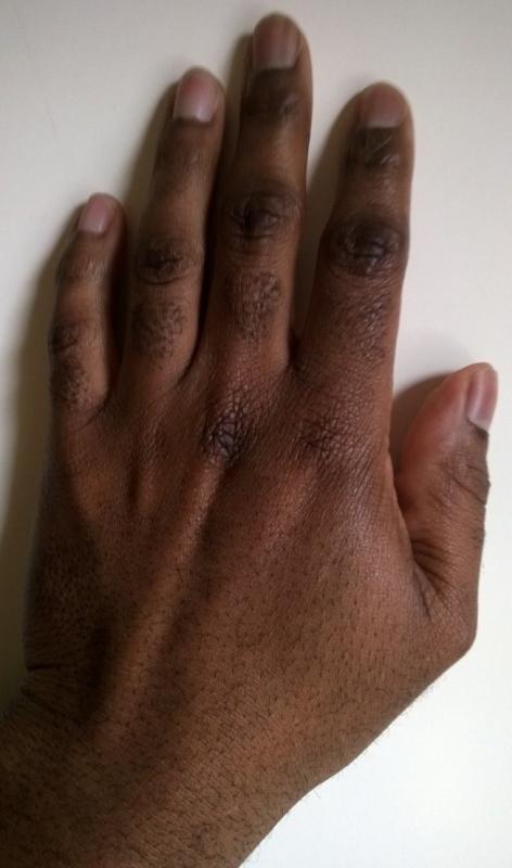 Hand Palms Down