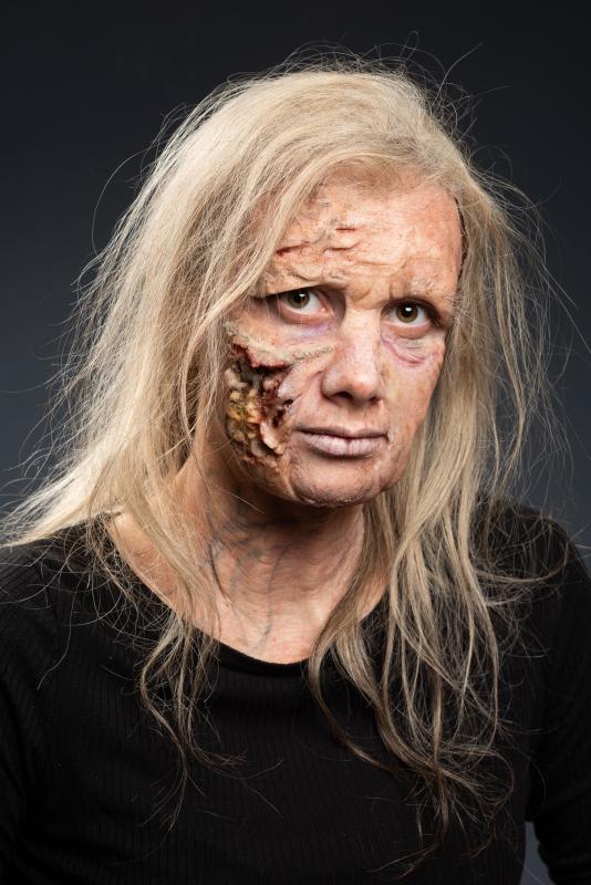 Full Face decay Prosthetics