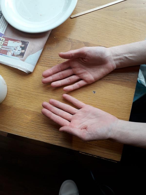 Hand photo (palms)