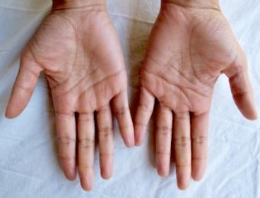 Hands back