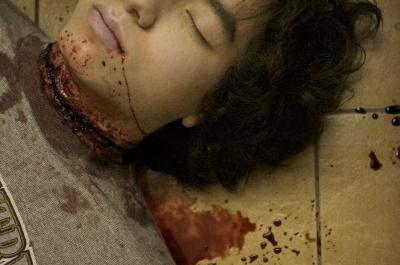 Slit Throat Victim