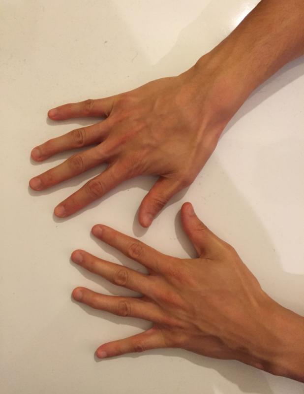 Hand (top)