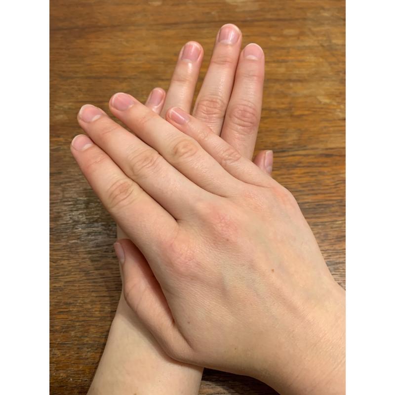Isabel M Patterson - Hands (Both)