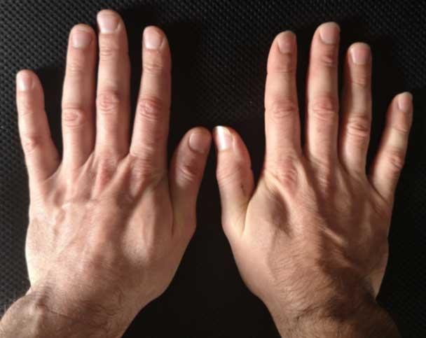 Hands (top)