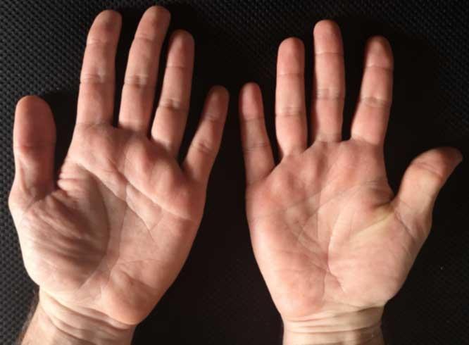 Hands (bottom)